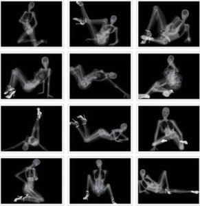 series of x-ray photos of a woman in various poses, similar to sexy ones they might make in a photo shoot